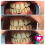 Реставрация зуба 2.1