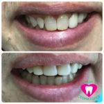 Реставрация центральных зубов