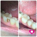 Лечение кариеса 4.6 зуба