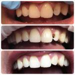 Реставрация 12 зуба