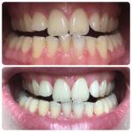 Комплексная отбеливающая чистка зубов