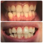 Комплексная гигиена полости рта