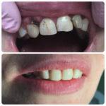 Реставрация зубов верхней челюсти
