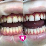 Комплексная гигиена полости рта (ультразвук, Air Flow)