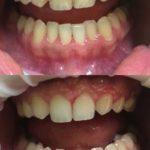 Комплексная гигиена полости рта (уз,air flow)