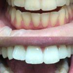 комплексная гигиена полости рта (уз,air flow) и отбеливание