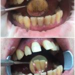 Комплексная чистка полости рта (Ультразвук, Air Flow)