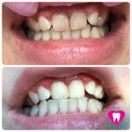 Реставрация 11,21 зубов