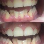 комплексная гигиена полости рта (ультразвук, аппарат Air Flow, полировка фторсодержащей  пастой )