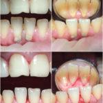 Комлексная гигиена полости рта
