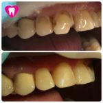 Реставрация зубов 1.2 ,1.1
