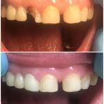 Реставрация зуба 1.2