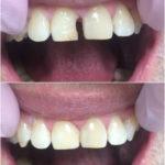 реставрация 11 зуба
