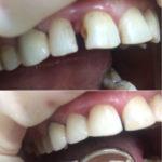 Реставрация 12.11 зубов