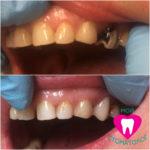 Реставрация 24 зуба