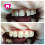 реставрация зуб 21