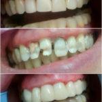 шинирование фронтальной группы зубов