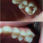 Лечение кариеса 26 зуба