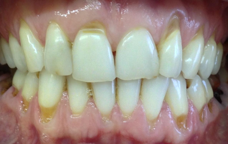 Как вылечить клиновидный дефект зубов 120